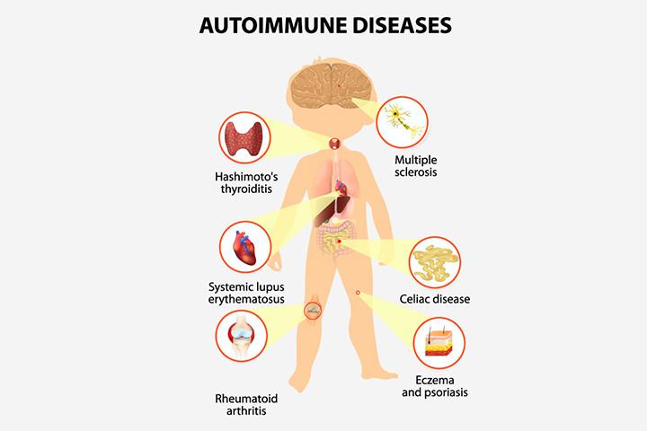 Autoimmune-Diseases-In-Children.jpg